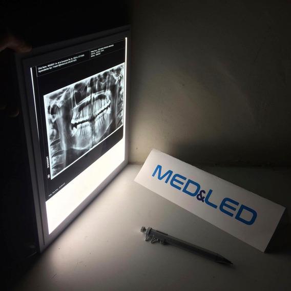 Negatoscopio Dental Led Para Radiografias Panoramicas 30x28
