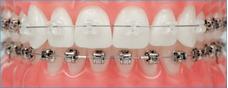 Ortodoncia, Brackets, Aparatos, Implantes. Dentista.