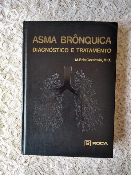 Asma Brônquica Diagnóstico E Tratamento M.eric Gershwin, M.d