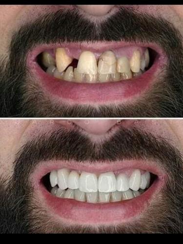 Imagem 1 de 1 de Arrume Seus Dentes No Boleto