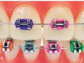 Dentista . Brackets, Ortodoncia . Implantes. Aparatos.