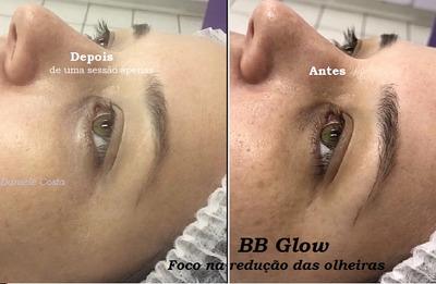 Bb Glow Para Olheiras E Facial Completo