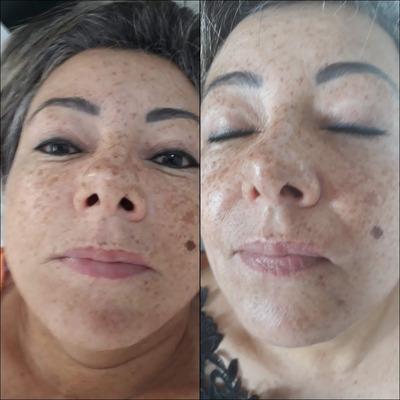 Tratamento Facial E Psoríase