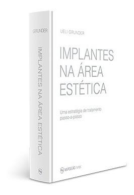 Livro Implantes Na Área Estética - Ueli Grunder