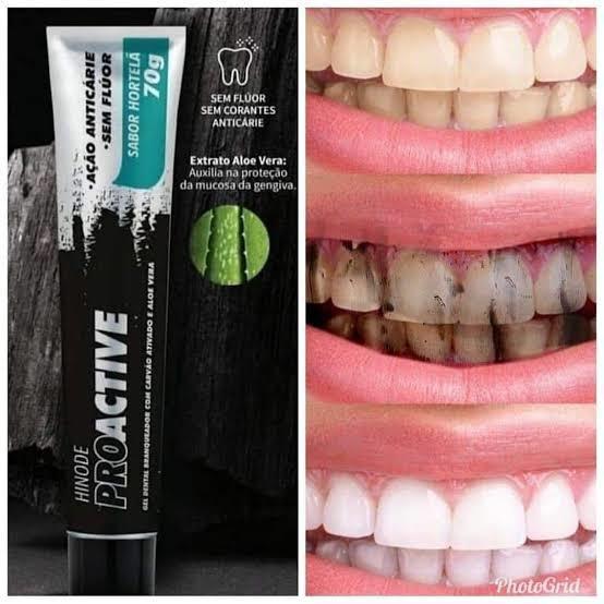 Hinode Proactive Gel Dental Carvão Ativado+aloe Vera __70g