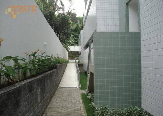 Apartamento Com 3 Dormitórios À Venda, 80 M² Por R$ 520.000 - Monteiro - Recife/pe - Ap3479