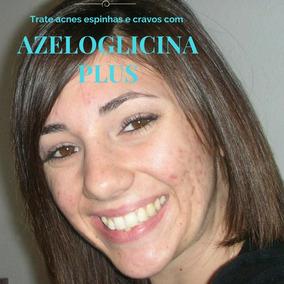 Azeloglicina ® Plus 50gr : Acne Espinhas Cravos Oferta