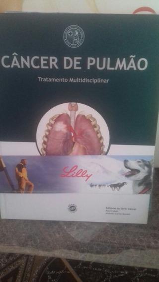 Câncer De Pulmão - Tratamento Multidisciplinar