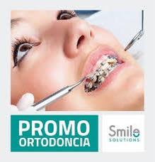 Tratamiento De Brackets - Ortodoncia Estetica O Metalica -