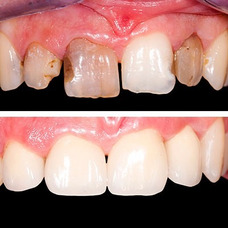 Carillas Dentales Composite Porcelana
