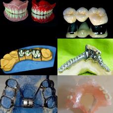 Mecánico Dental Prótesis Dental Flexible Acrílica Porcelana
