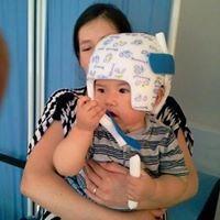 Cascos Ortopédicos Para Niños Con Plagiocefalia
