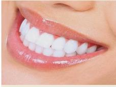 Odontologia Resina Colocar Diente Protesis T Conducto