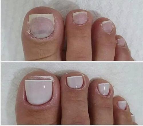 Imagem 1 de 5 de Manicure,pedicure E Spar Dos Pes. Atendimento Domiciliár