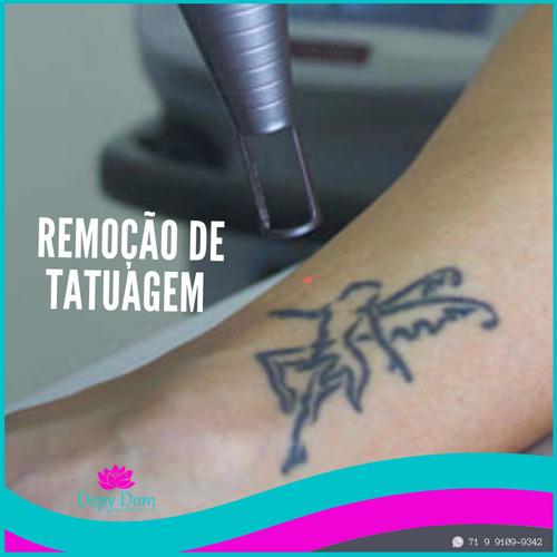 Imagem 1 de 2 de Remoção A Laser De Tatuagem E Micropigmentação