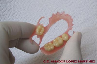Protesis Flexible Dentaduras Reparaciones Todo Quito Metal