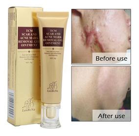 Acne Scar Remover Creme Cicatrizes Queimadura Pronta Entrega