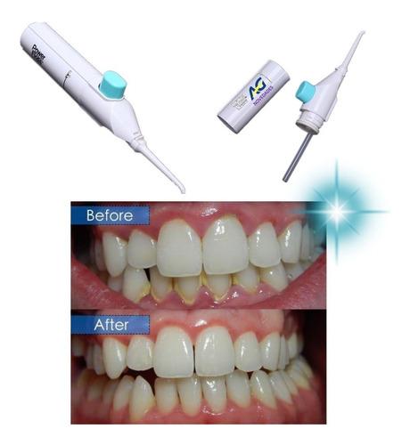 Imagen 1 de 6 de Limpiador Dental Bucal Duchador Irrigador  Agnovedades