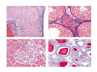 3b Scientific Gmbh W13403 Series Iv. Hormone