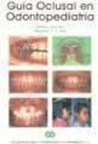 Guía Oclusal En Odontopediatría