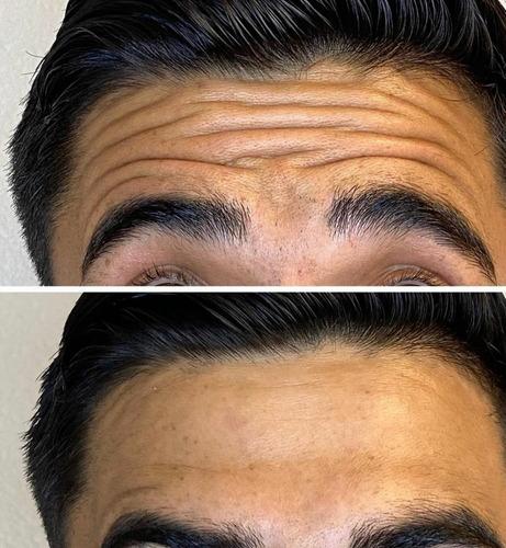 Imagem 1 de 10 de Aplicação Enzimas Gordura Skinbooster Papada Estria Celulite