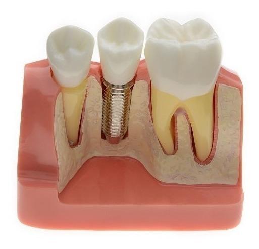 Azdent® Modelo Dental Puente Análisis Implante Corona Diente