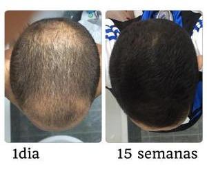 Crece Cabello Barba - Cosmético Trata 6 Meses