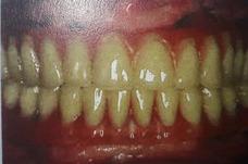 Implantes Dentales En 48 Horas