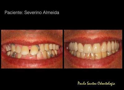 Concerto Em Prótese Dentária Em Geral