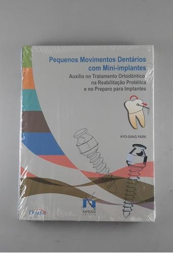 Movimentos Dentários Mini-implantes Livro Odontologico