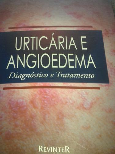 Urticária E Angiodema - Diagnóstico E Tratamento