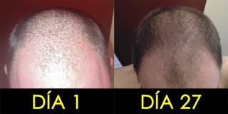 Adios Alopecia Y Cadia De Cabello, Recuperalo!