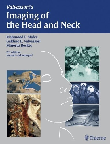 Imaging Of The Neck And Head - Valvassori, Mafee