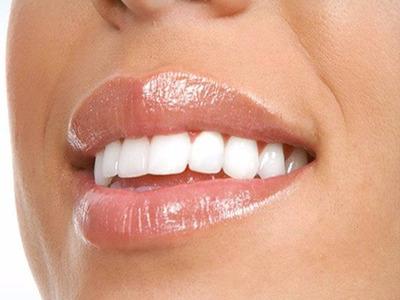 Implante Dental + Pilar + Corona De Porcelana. Lomas De Z.