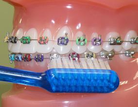 Ortodoncia Odontologo Limpieza Estetica, Brackets, Dental