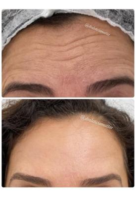 Harmonização Facial - Bh - Botox / Preenchimento Facial