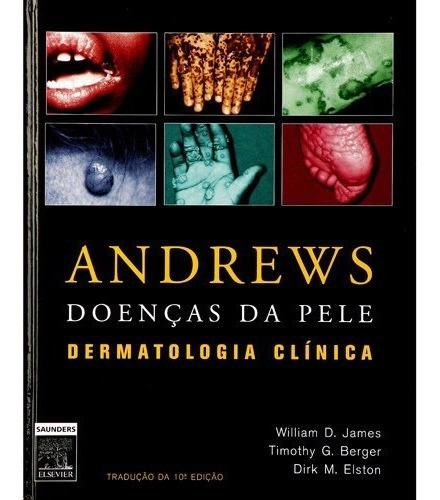 Andrews Doenças Da Pele Dermatologia Clínica
