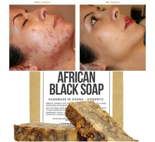 Jabon Negro Áfricano Limpiador Acne Manchas Cicatrices X120g