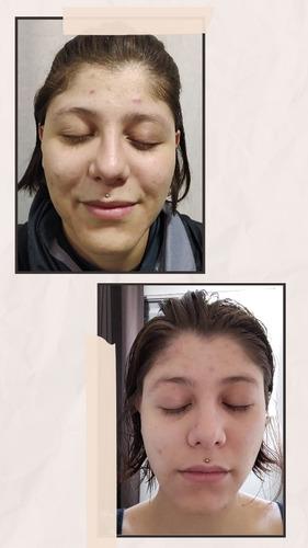 Imagem 1 de 1 de Tratamentos Faciais