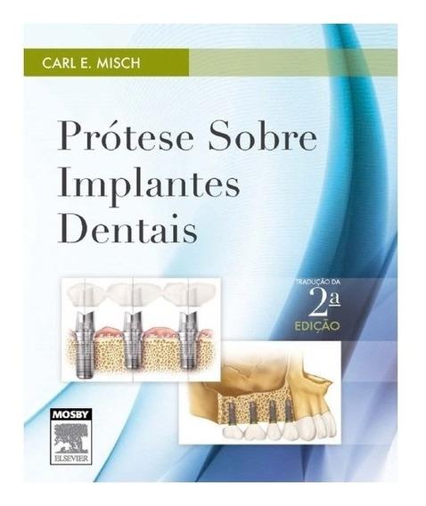 Prótese Sobre Implantes Dentais