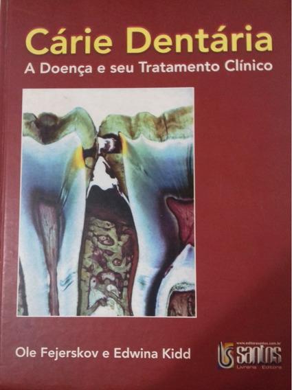 Cárie Dentária- Livro Físico