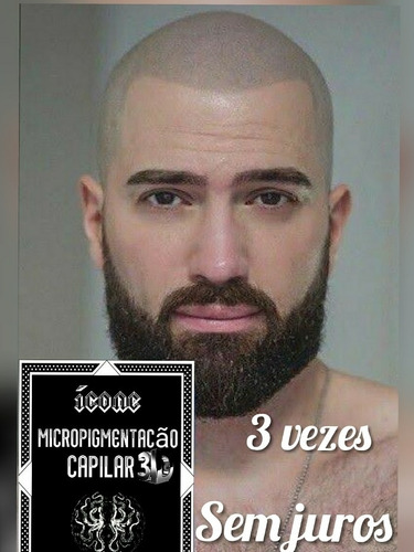 Micropigmentacão Capilar 3d