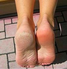 Pedicura A Domicilio(uñas Engrosadas Etc)
