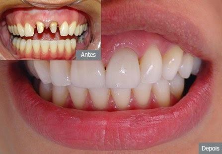 922b91d1fb58 Prótese Dentária Sorriso Perfeito Perfect Solução Prática - R$ 49,90 ...