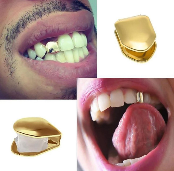 Grillz Dente De Ouro Incisivo Dourado Trap Rapper