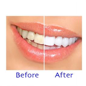 eb3fd286b Kit Clareamento Oral B - Beleza e Cuidado Pessoal no Mercado Livre ...