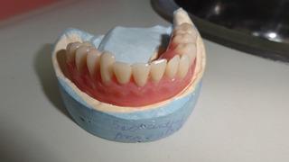 Consulta Odontologo A Dom/consultorio Para Prótesis Dental