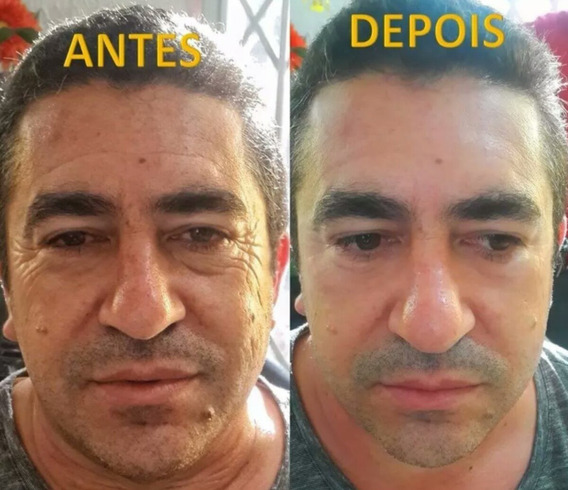 Instantly Ageless Cx 50 Un.