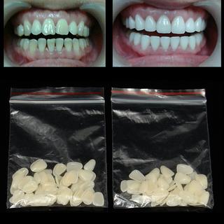 Dental Ultra-delgado Blanqueamiento Carillas De Resina Dient
