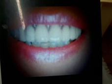 Mecánico Dental,odontologa A Domicilio